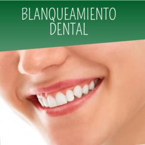 ¿TE GUSTARÍA LUCIR UNOS DIENTES MÁS BLANCOS? - CLÍNICA DENTAL DR. RICARDO VASQUEZ