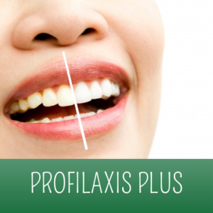 PROFILAXIS PLUS - CLÍNICA DENTAL DR. RICARDO VASQUEZ